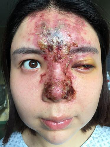 powikłania po kwasie hialuronowym u kosmetyczki