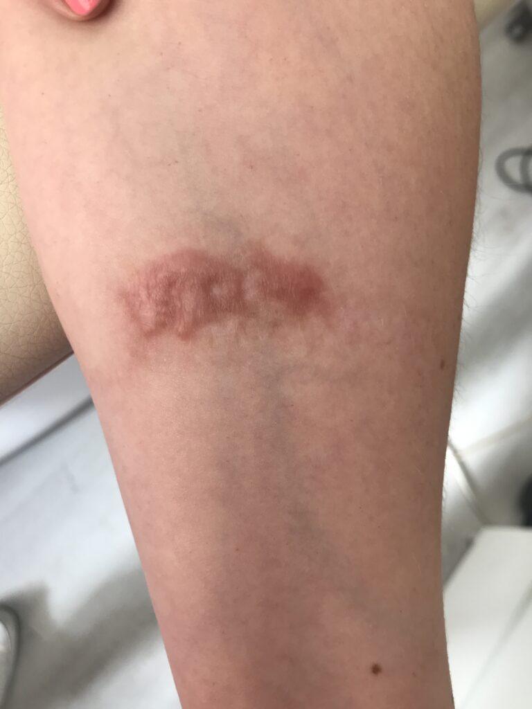 usuwanie blizn po oparzeniu