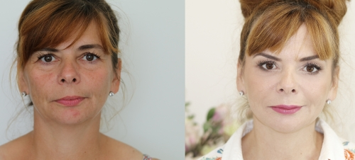 metamorfoza med-beauty, przed i po, before and after